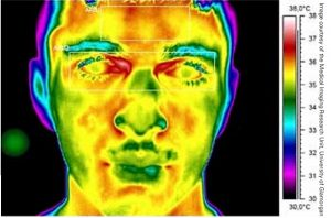 Infrared thermography image of a face